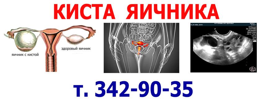 Киста на яичнике лечение в домашних условиях 314