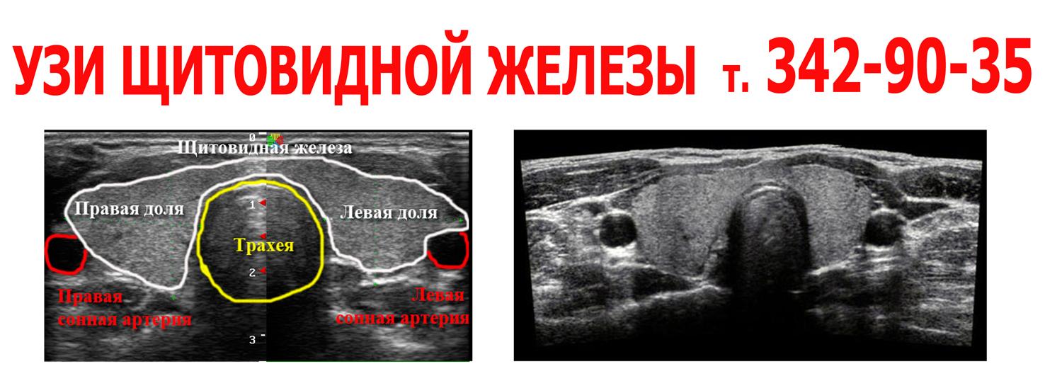 Узи анатомия щитовидной железы